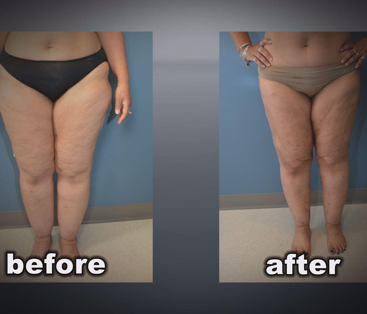 lipedema înainte și după pierderea în greutate
