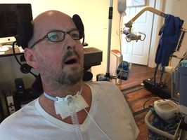 After ice bucket challenge, ALS patients struggle to find care
